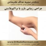 جراحی زیبایی بازو یا براکیوپلاستی