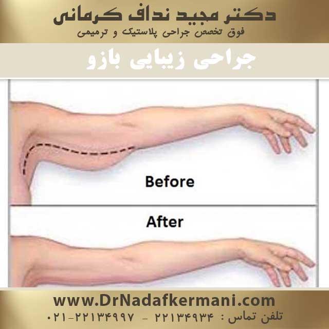 جراحی زیبایی بازو