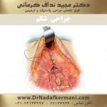 جراحی زیبایی ابدومینوپلاستی