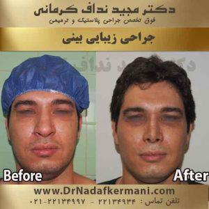جراحی بینی اقا 1