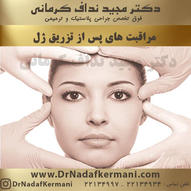 مراقبت های پس از تزریق ژل