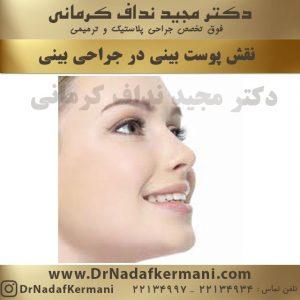 نقش پوست در جراحی بینی