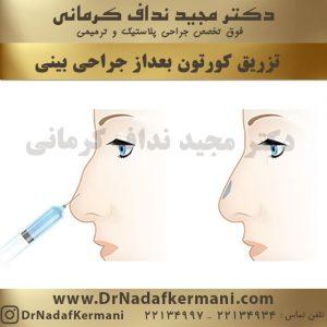 تزریق کورتون در بینی