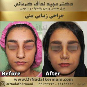 جراحی زیبایی بینی1