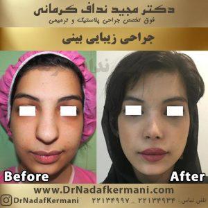 جراحی زیبای بینی 1