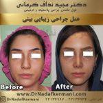 اصلاح معایب بینی