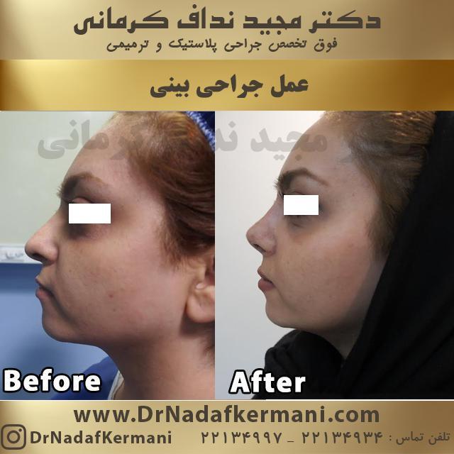 فصل مناسب جراحی بینی