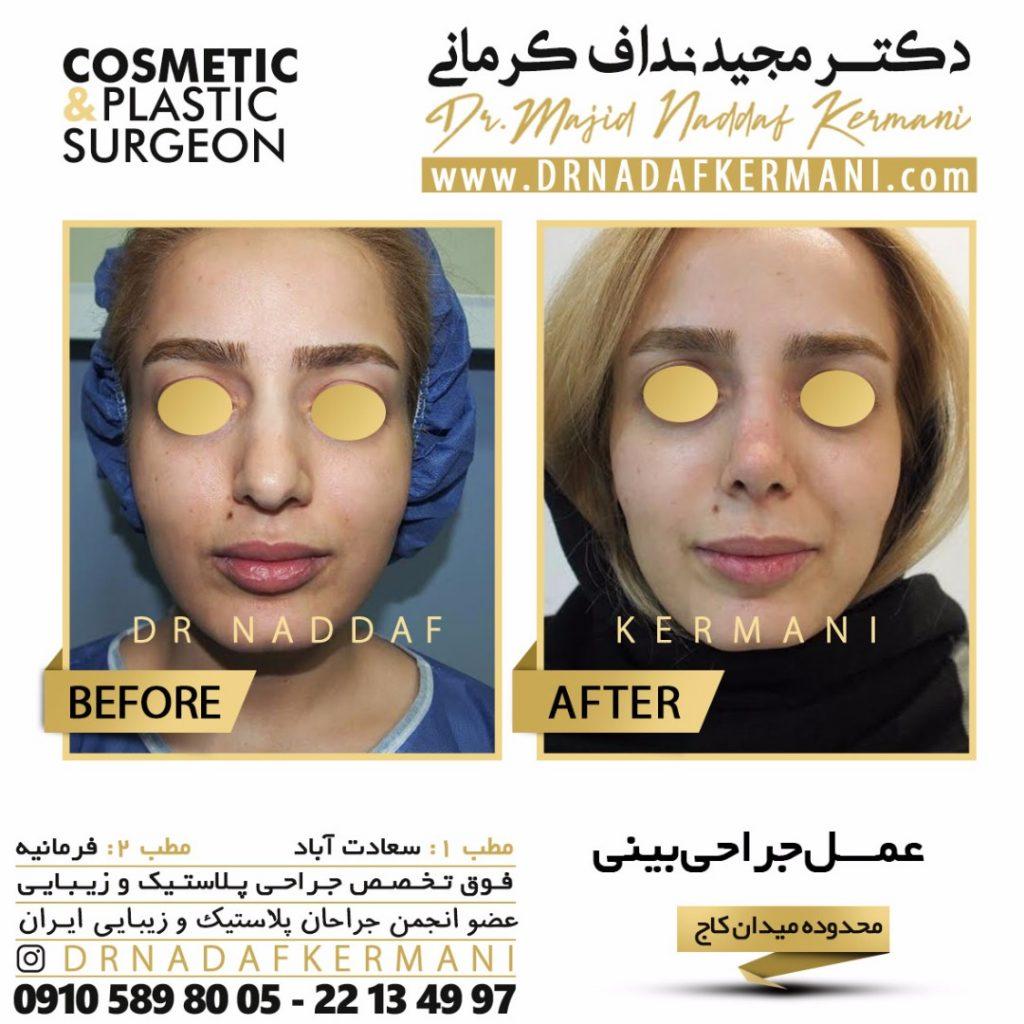 نمونه جراحی بینی توسط دکتر نداف کرمانی