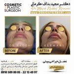 جراحی بینی و کم خونی