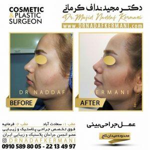 نمونه ی جراحی بینی توسط دکتر مجید نداف کرمانی