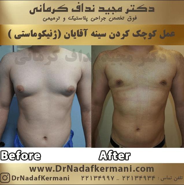 نمونه ژنیکوماستی توسط دکتر نداف کرمانی
