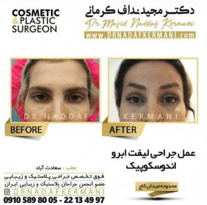 نمونه جراحی لیفت ابرو توسط دکتر مجید نداف کرمانی